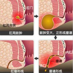 肛周脓肿是怎么形成的