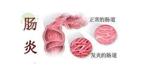 慢性肠炎具体症状是什么?要怎么调理?