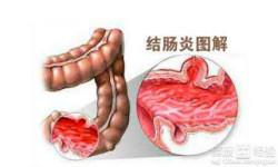 结肠炎为什么多发?其症状都有哪些?
