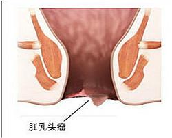肛乳头肥大的危害你了解多少?