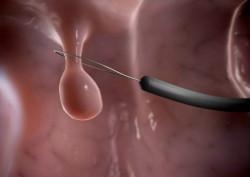 无痛肠镜检查为什么现阶段大受欢迎?