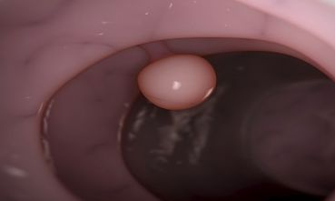 肠道出血原因何在?有些疾病不可大意!