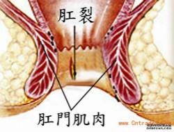 新鲜肛裂不宜手术,怎么采取保守疗法?