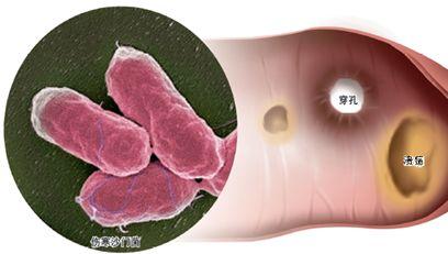 肠穿孔有什么后果?出现的原因是什么?