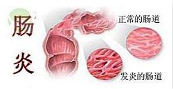 直肠炎分为哪几种?直肠炎有什么症状?