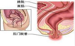 福州医博,为您的肛肠健康保驾护航