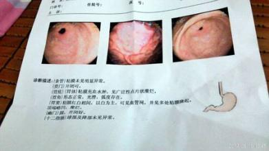 福州做胃镜检查