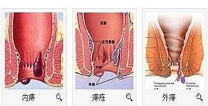 福州混合痔治疗手术多少钱