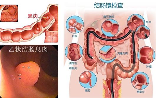 检查肠道疾病为什么选择肠镜