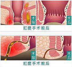 肛瘘的治疗办法和预防建议
