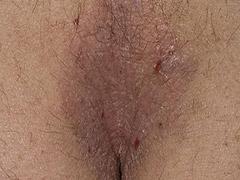 福州哪家医院治疗肛门痒专业