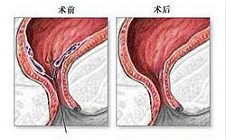福州痔疮创口微小手术有什么优势