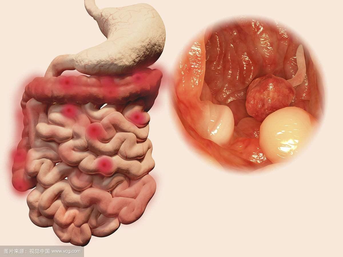 胃肠功能紊乱的治疗方法
