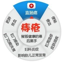 福州医博:治痔疮选对办法