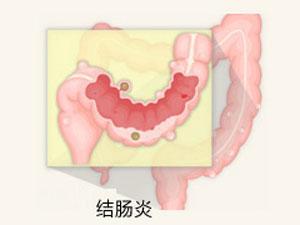 结肠炎的治疗方法是什么