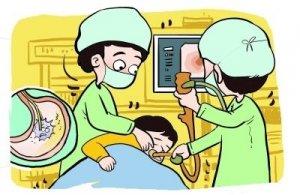 做胃镜检查多少钱【胃肠手术】