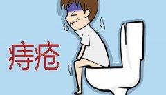 治疗痔疮哪个方法好?