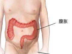 腹胀最好的治疗方法?